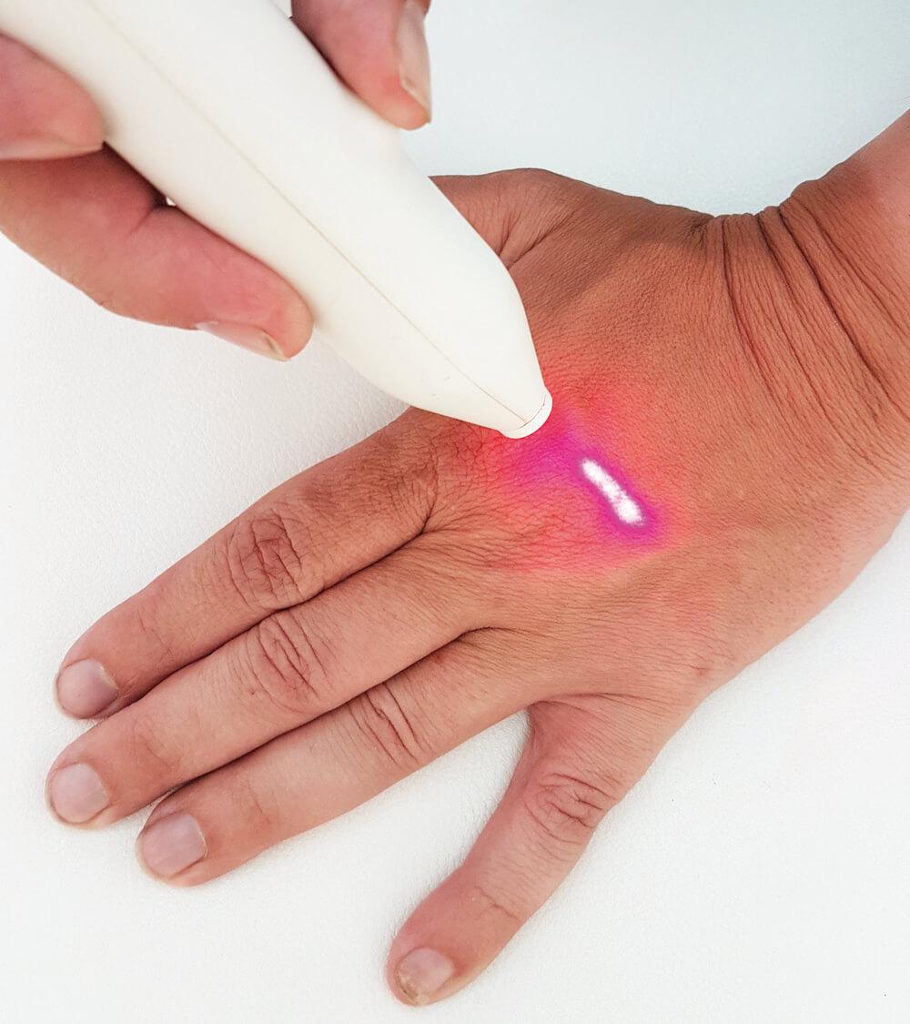 Laserbehandlung an der Hand