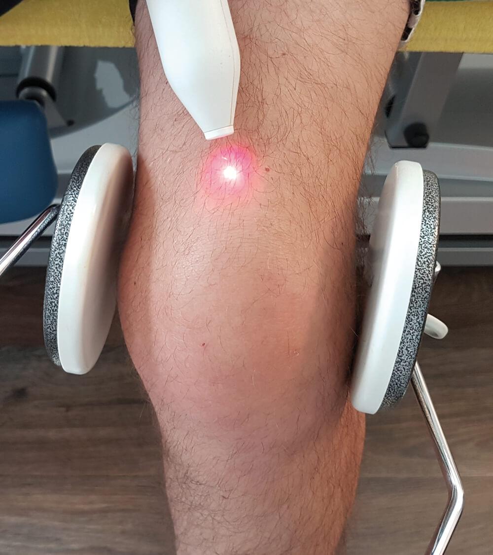 Helmholtz Kombiniert mit Laser