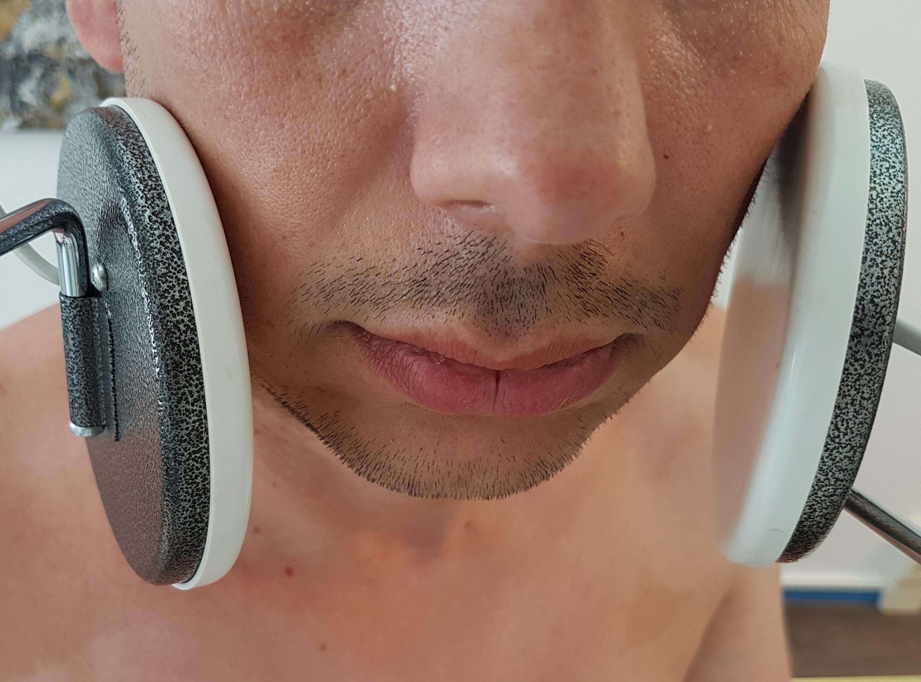Behandlung mit Helmholtzappllikator Kiefergelenk